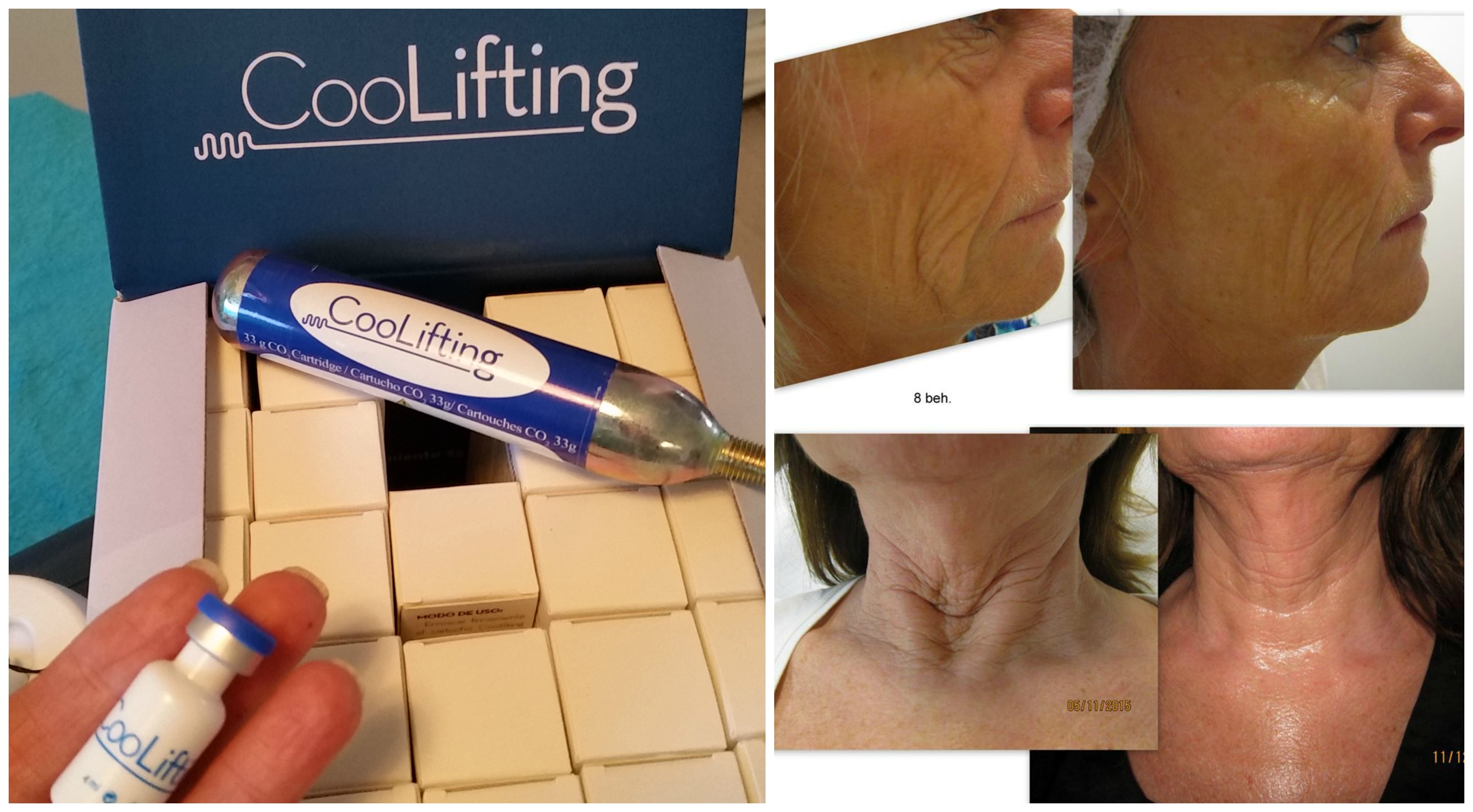 Coollifting collage
